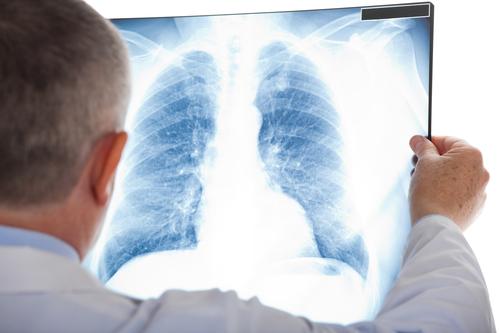 Rundherd Lunge – ist das gefährlich?
