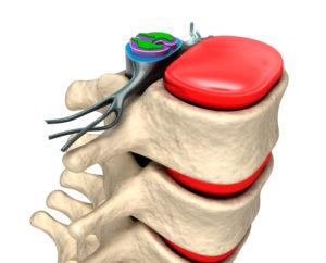 Ursachen und Symptome einer Spondylosis Deformans