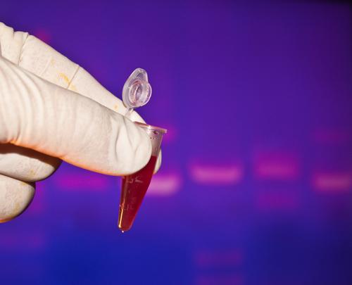 Thrombose Schnelltest – wie funktioniert er?