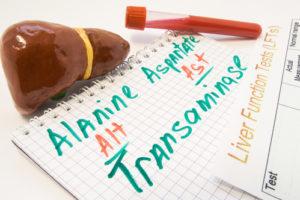 Transaminasenerhöhung – richtige Diagnose ist sehr wichtig