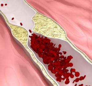 Vasosklerose – ist wirklich gefährlich?