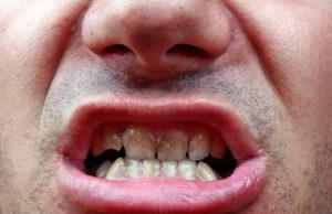 Weiße Flecken auf den Zähnen – Ursachen dafür