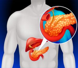 Zyste in der Bauchspeicheldrüse – Symptome und Therapie