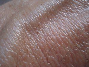 Heller Hautkrebs – wie erkennen und behandeln?