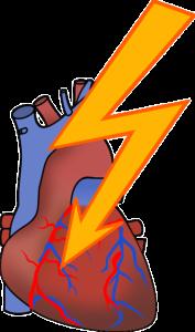 Kardiogenerschock – Ursachen, Behandlung und Therapie