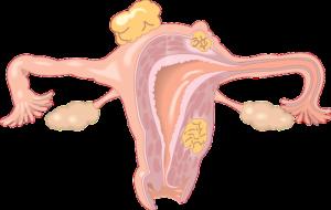 Polypen in Gebärmutter – Ursachen, Symptome und Behandlung