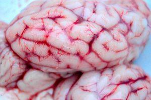 Sinus Cavernosus – Anatomie und Diagnostik