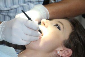 Zahnhalskaries – Ursachen und Symptome
