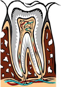 Zahnwurzelentwicklung mit Antibiotika behandeln – wie lange?