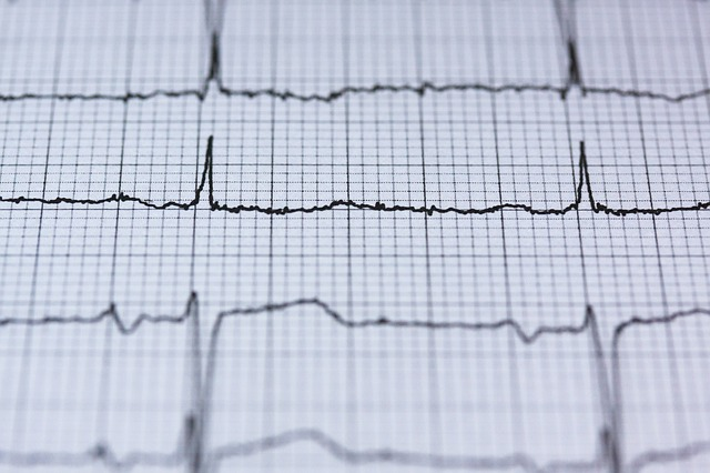 AV Knoten – Frequenz Filterung, mögliche Herzrhythmusstörungen und Folgen