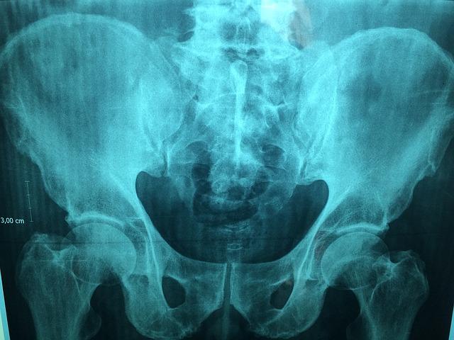 Epiphysiolysis Capitis Femoris – Diagnostik, Therapie und Behandlung