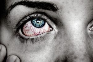 Herxheimer Reaktion – Ursachen, Symptome und alternative Behandlung
