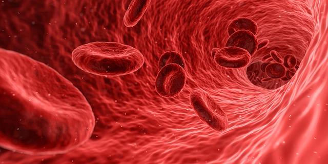 Tiefe Beinvenenthrombose – Ursachen, Symptome, Folgen und Therapie