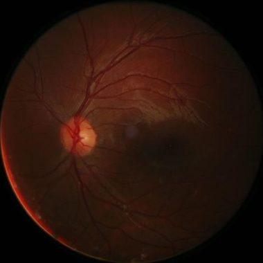Gliose – Definition, Ursachen, Symptome und Therapie