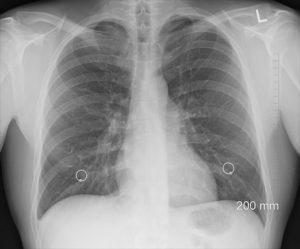 Interstitielle Pneumonie – Ursachen, Symptome, Therapie und Behandlung