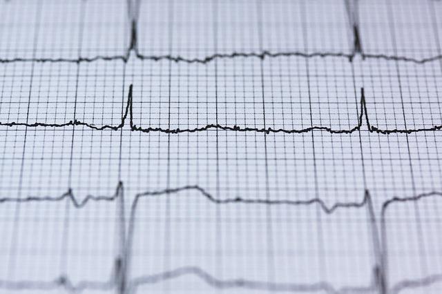 Herzuntersuchung – Regelmäßige Herz-Checks sind notwendig