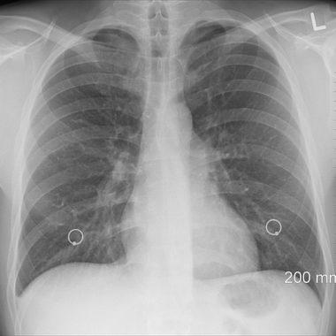 Lungenpest – Symptome, Diagnose und Behandlung