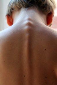 Rückenmarkspunktion – Gründe, Ablauf und mögliche Komplikationen