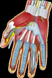 Was tun bei Sehnenscheidenentzündung? - Nützliche Tipps