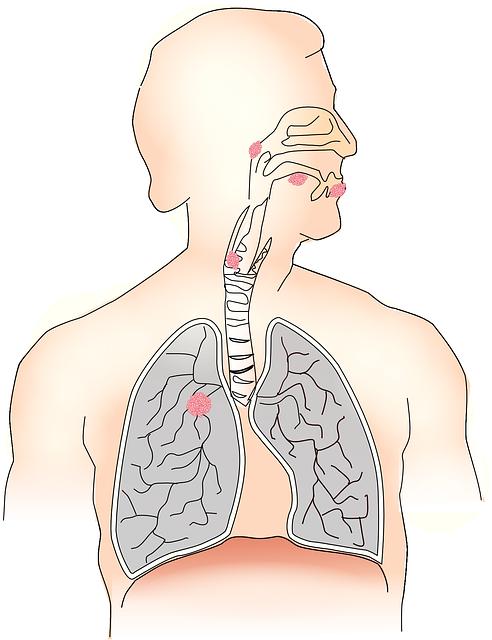 Adenokarzinom