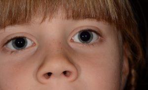Erweiterte Pupillen – Entstehung und Ursachen