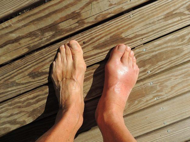 Geschwollene Knöchel – Ursachen und hilfreiche Hausmittel