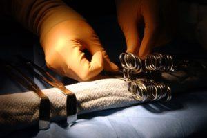 Labienriss – Definition, Ursachen und Behandlung