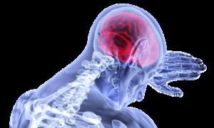Blutgerinnsel im Kopf – Ursachen, Symptome und Diagnose