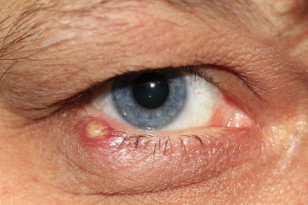 Eiter im Auge – Wann zum Arzt?