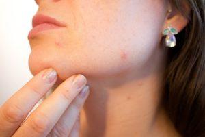 Follikulitis – Anzeichen, Behandlung und Ursachen