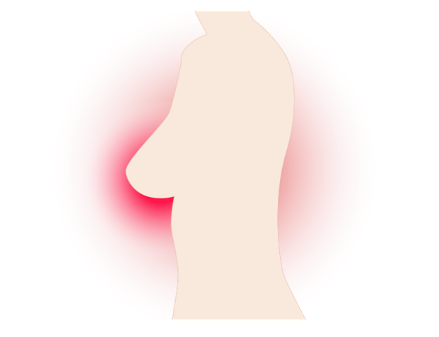 Geschwollene Brust – Merkmale, Ursachen und Behandlung