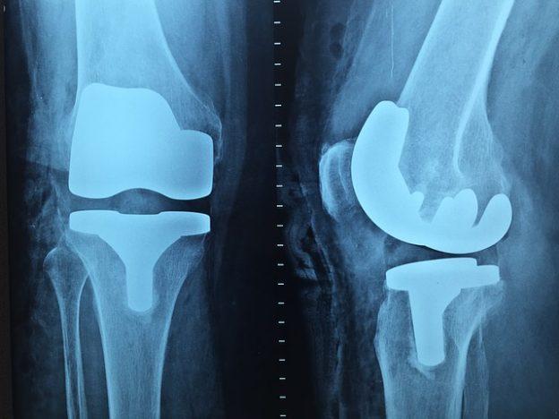 Insertionstendopathie – Diagnose, Behandlung und Symptome