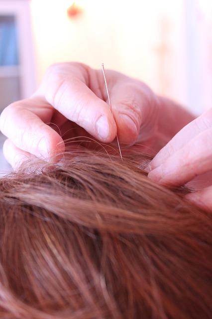 Nervenentzündung am Kopf – Symptome und Behandlung