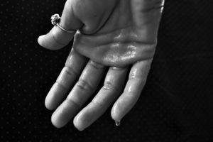 Schwitzende Hände – Ursachen, Behandlung und wirkende Mittel