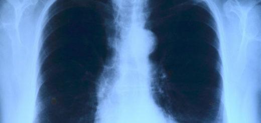Röntgenbild einer Thoraxprellung