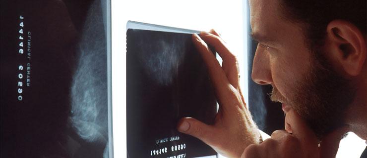 weißer Hautkrebs kann von Arzt früh entdeckt werden
