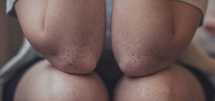Wasser im Knie bei einer Frau