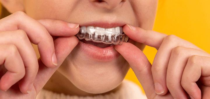 Mädchen ohne Zahnspange mit Clear Aligners